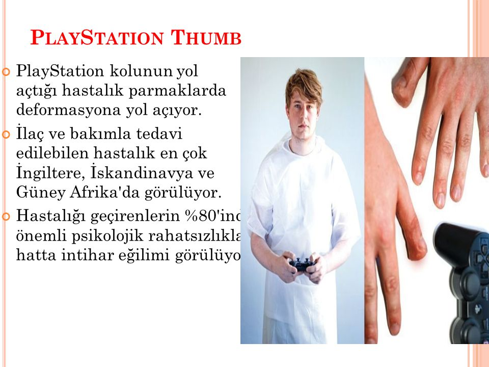 PlayStation Thumb PlayStation kolunun yol açtığı hastalık parmaklarda deformasyona yol açıyor.