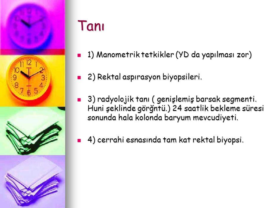 Tanı 1) Manometrik tetkikler (YD da yapılması zor)