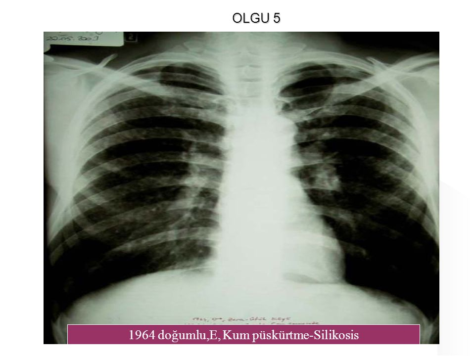 1964 doğumlu,E, Kum püskürtme-Silikosis