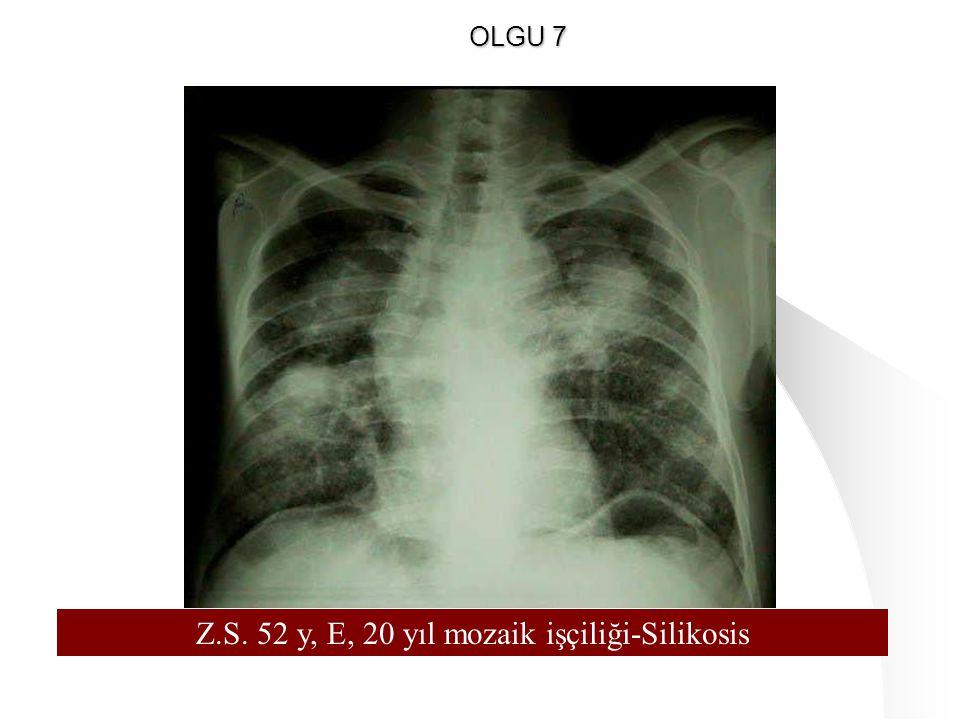 Z.S. 52 y, E, 20 yıl mozaik işçiliği-Silikosis