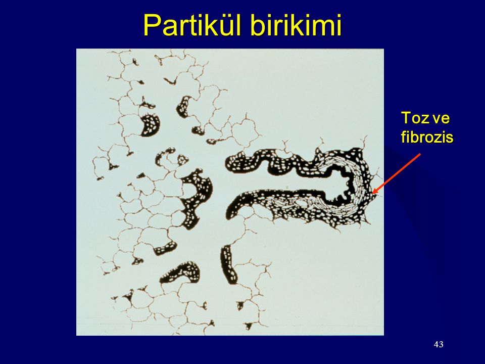 Partikül birikimi Toz ve fibrozis
