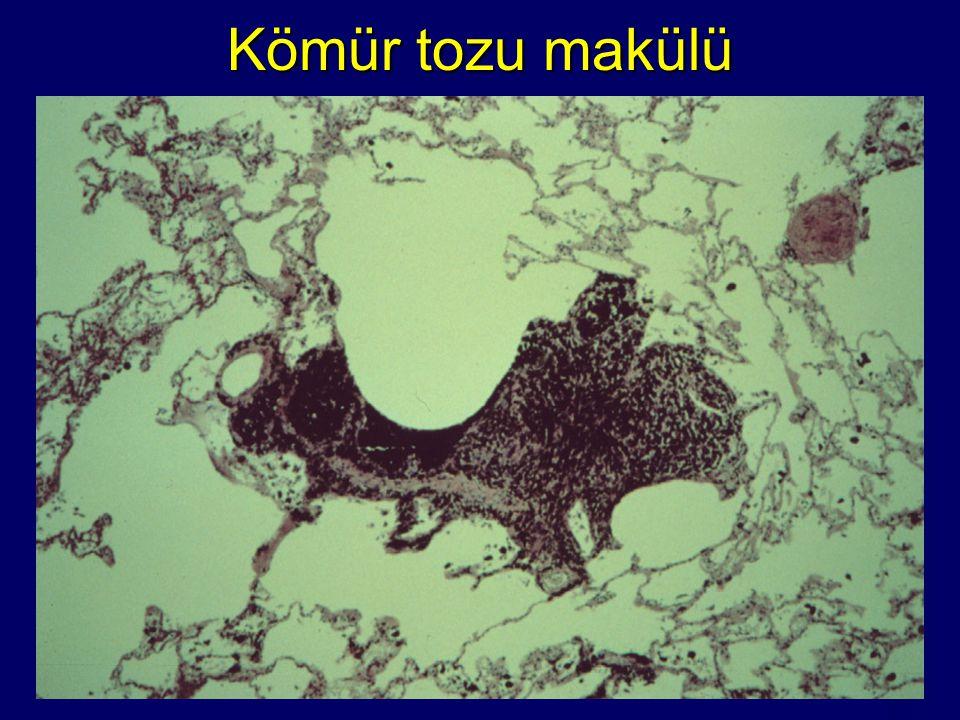 Kömür tozu makülü Coal dust macule with mild centriacinar emphysema.