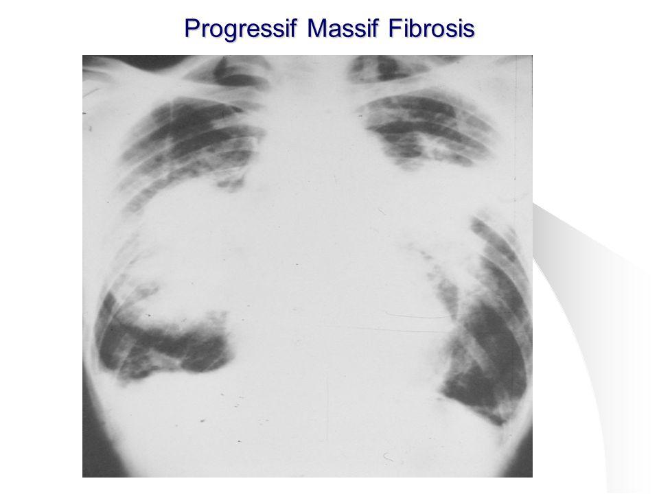 Progressif Massif Fibrosis