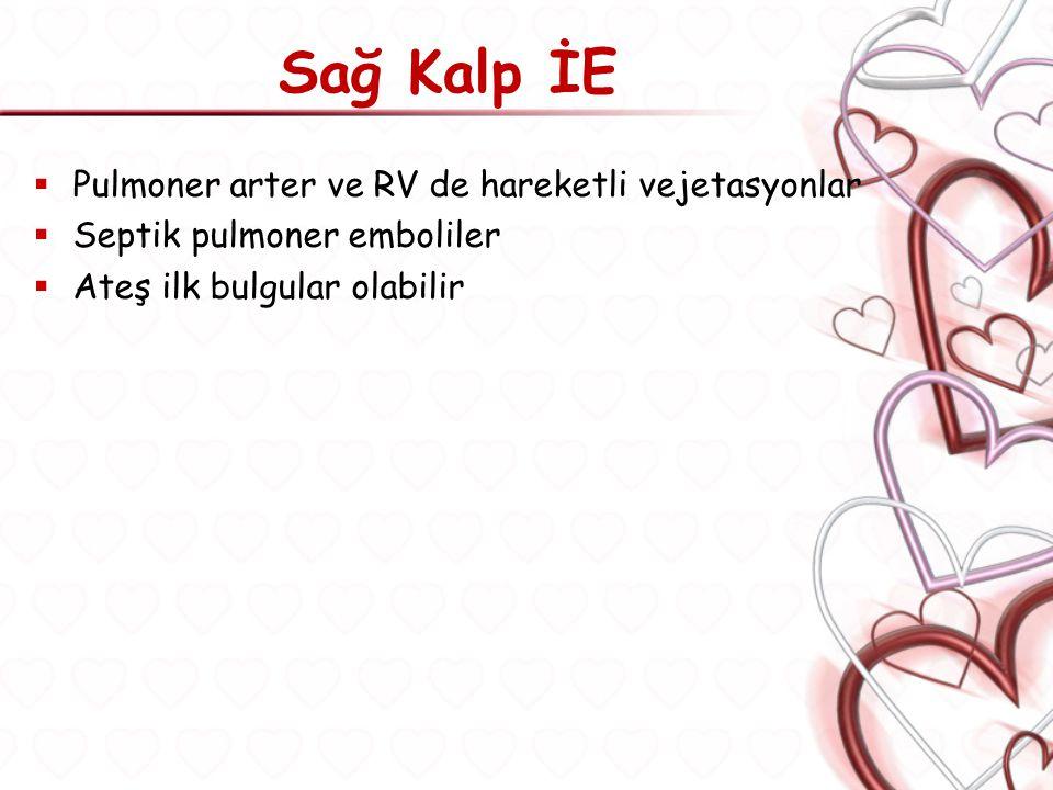 Sağ Kalp İE Pulmoner arter ve RV de hareketli vejetasyonlar