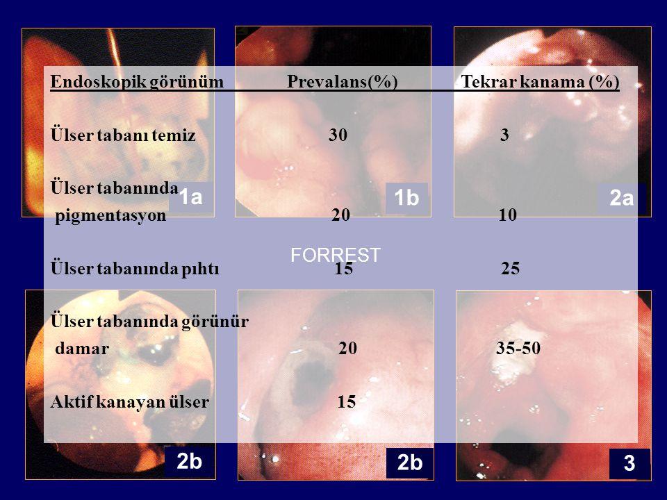 1a 1b 2a 2b 2b 3 Endoskopik görünüm Prevalans(%) Tekrar kanama (%)