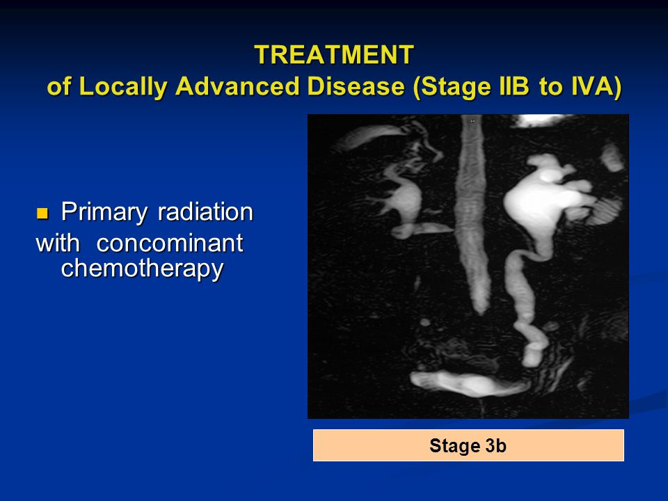 TREATMENT of Locally Advanced Disease (Stage IIB to IVA)