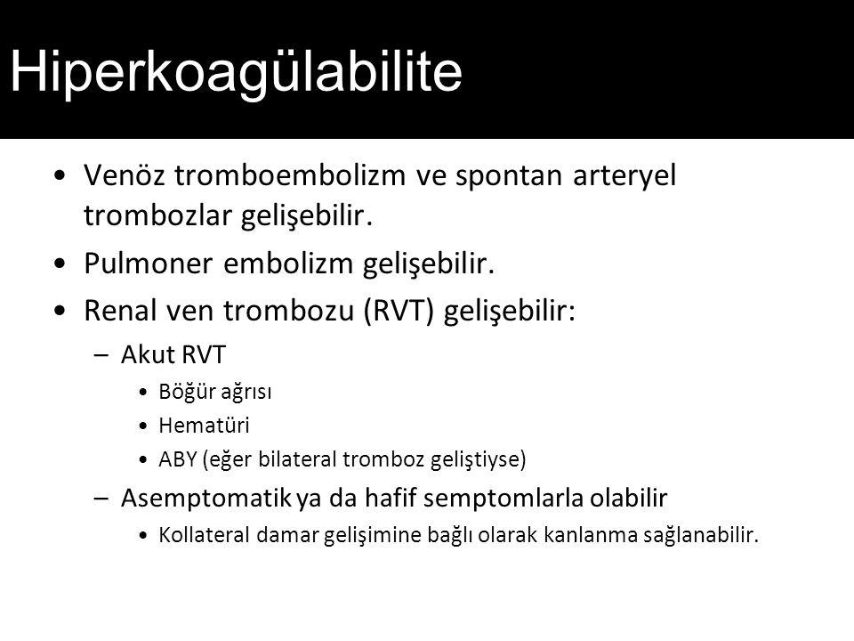 Hiperkoagülabilite Venöz tromboembolizm ve spontan arteryel trombozlar gelişebilir. Pulmoner embolizm gelişebilir.