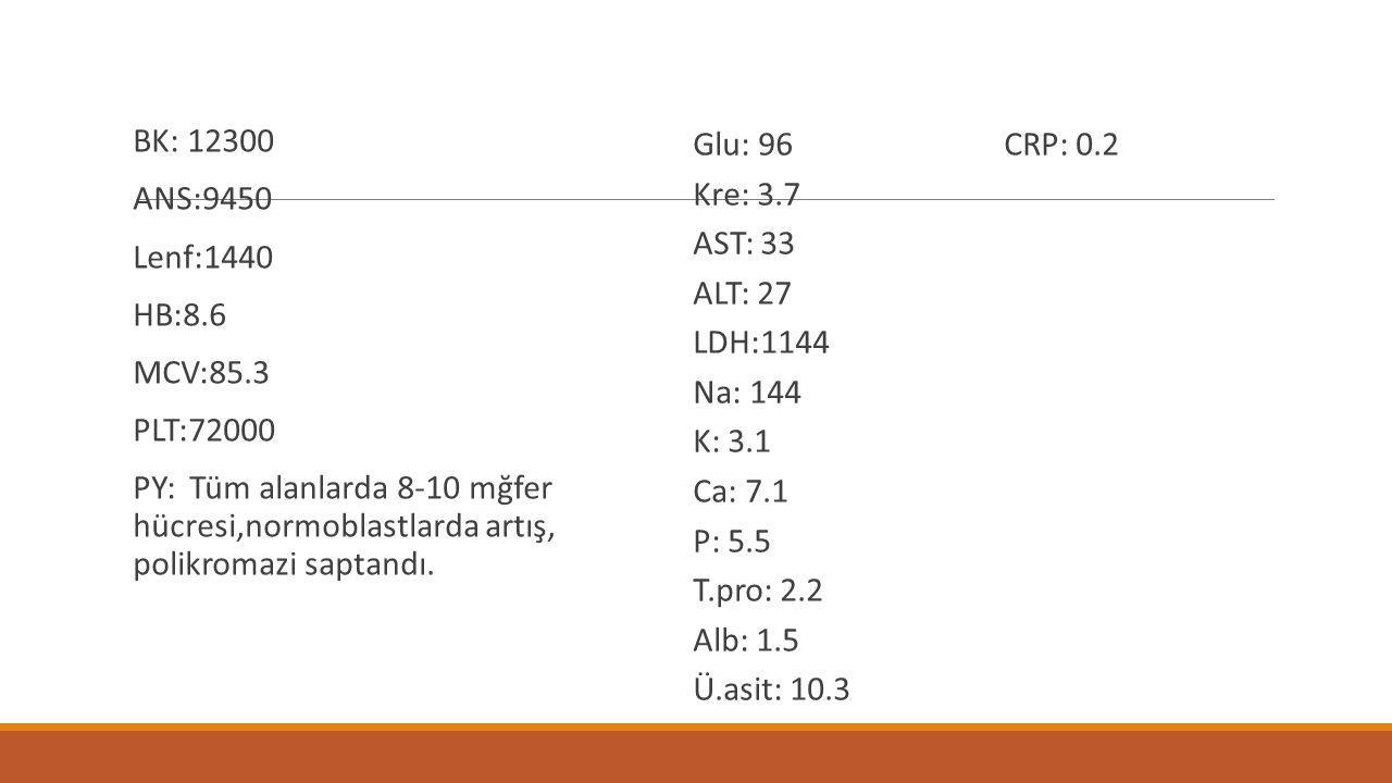 BK: 12300 ANS:9450. Lenf:1440. HB:8.6. MCV:85.3. PLT:72000.
