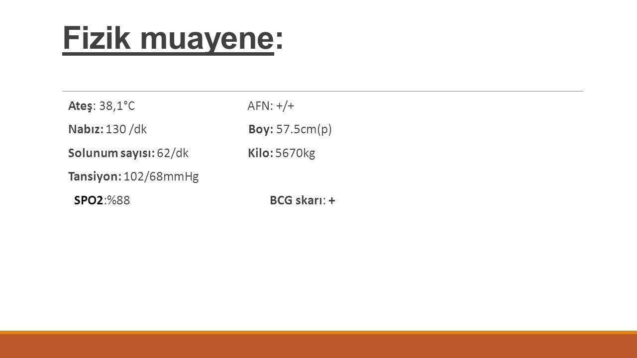 Fizik muayene: Ateş: 38,1°C AFN: +/+ Nabız: 130 /dk Boy: 57.5cm(p)