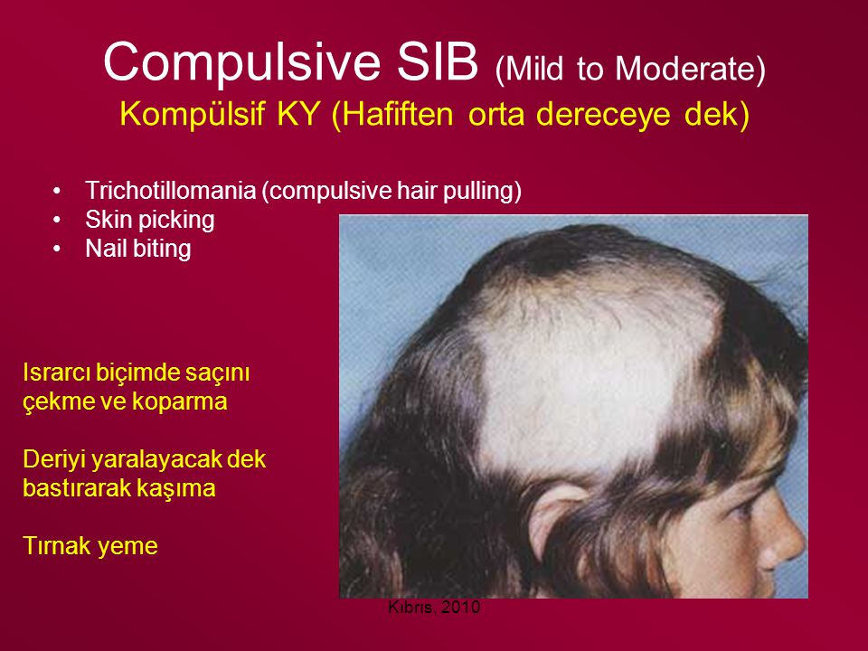 Compulsive SIB (Mild to Moderate) Kompülsif KY (Hafiften orta dereceye dek)