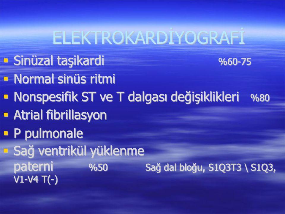 ELEKTROKARDİYOGRAFİ Sinüzal taşikardi %60-75 Normal sinüs ritmi