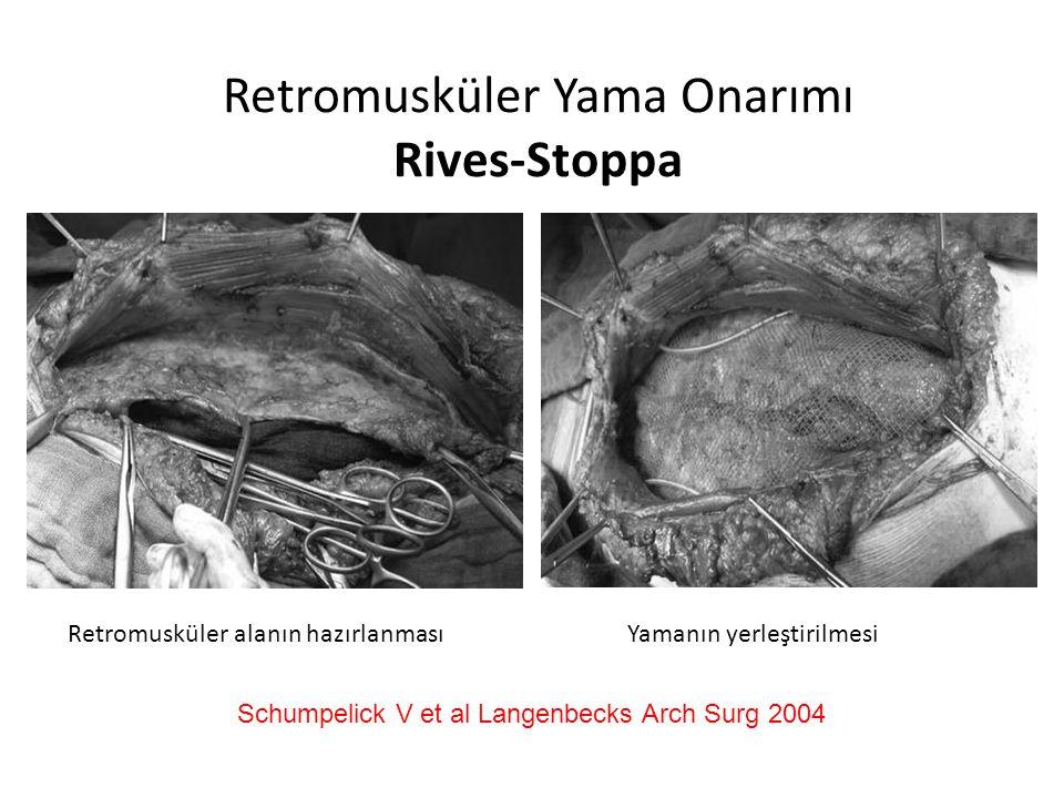 Retromusküler Yama Onarımı Rives-Stoppa
