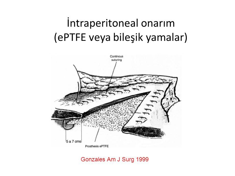 İntraperitoneal onarım (ePTFE veya bileşik yamalar)