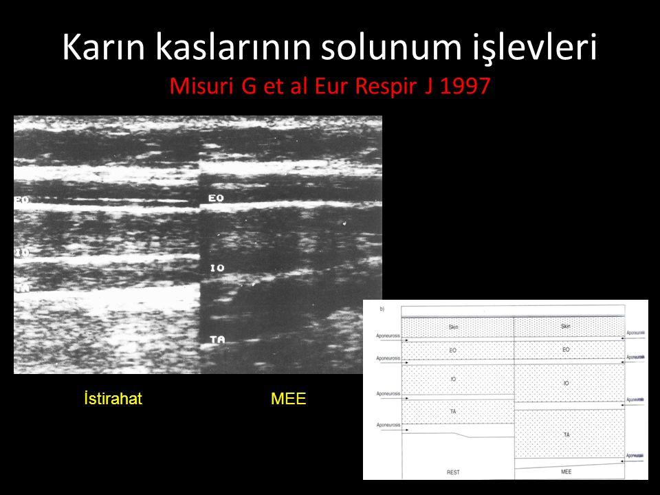 Karın kaslarının solunum işlevleri Misuri G et al Eur Respir J 1997