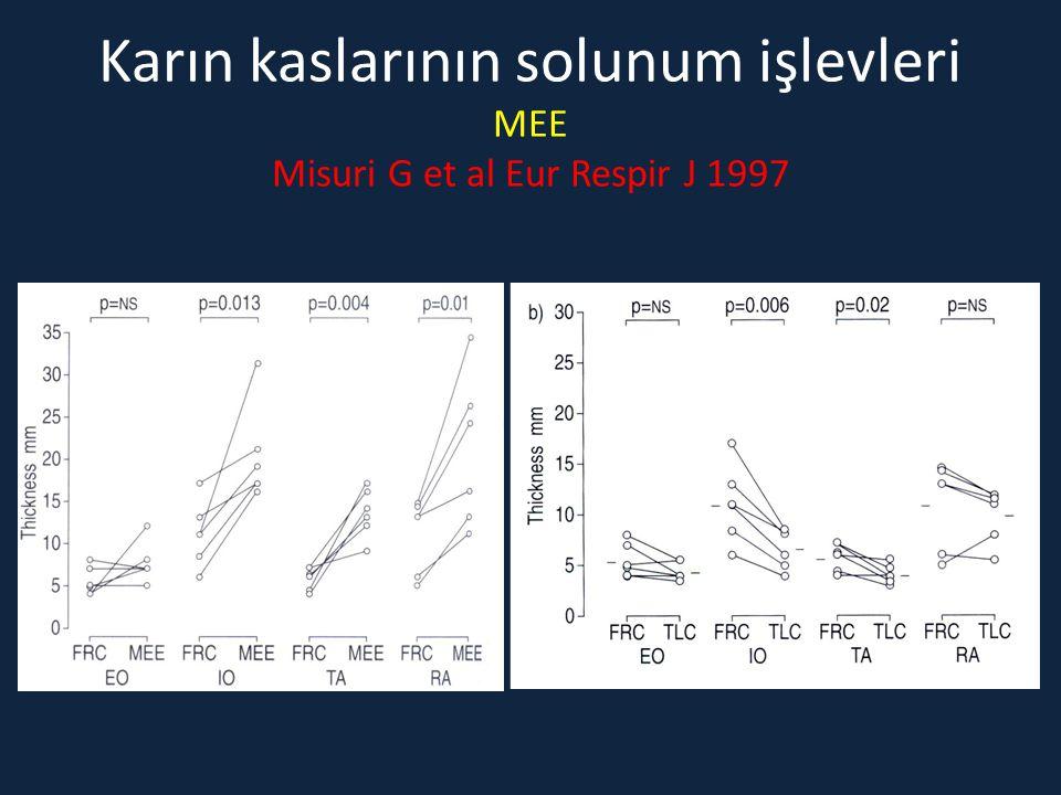 Karın kaslarının solunum işlevleri MEE Misuri G et al Eur Respir J 1997