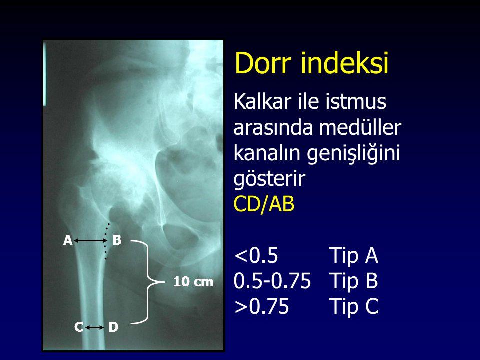 Dorr indeksi Kalkar ile istmus arasında medüller kanalın genişliğini gösterir. CD/AB. <0.5 Tip A.