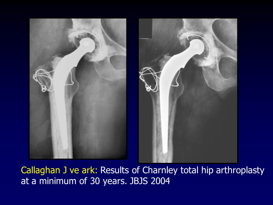Callaghan J ve ark: Results of Charnley total hip arthroplasty at a minimum of 30 years. JBJS 2004