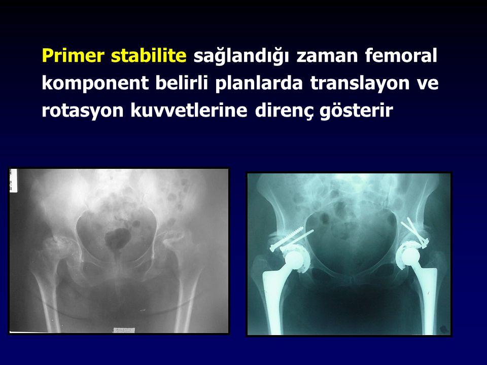 Primer stabilite sağlandığı zaman femoral