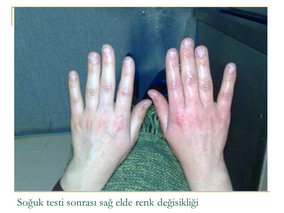 Soğuk testi sonrası sağ elde renk değisikliği