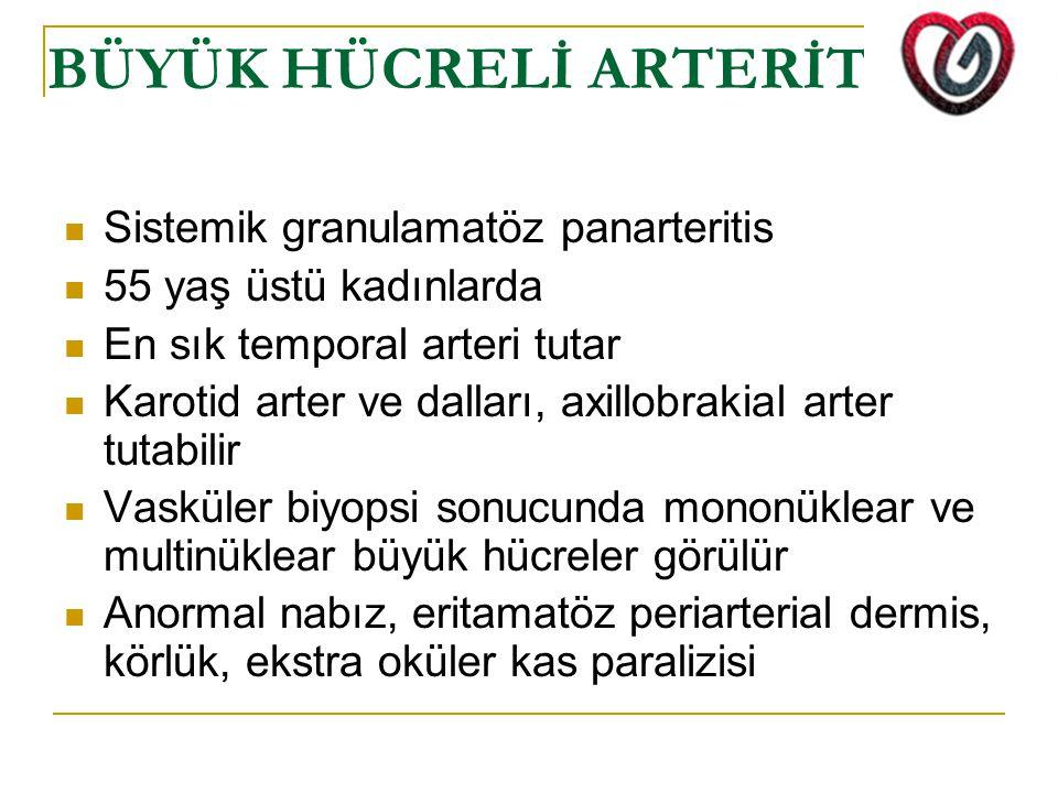 BÜYÜK HÜCRELİ ARTERİT Sistemik granulamatöz panarteritis