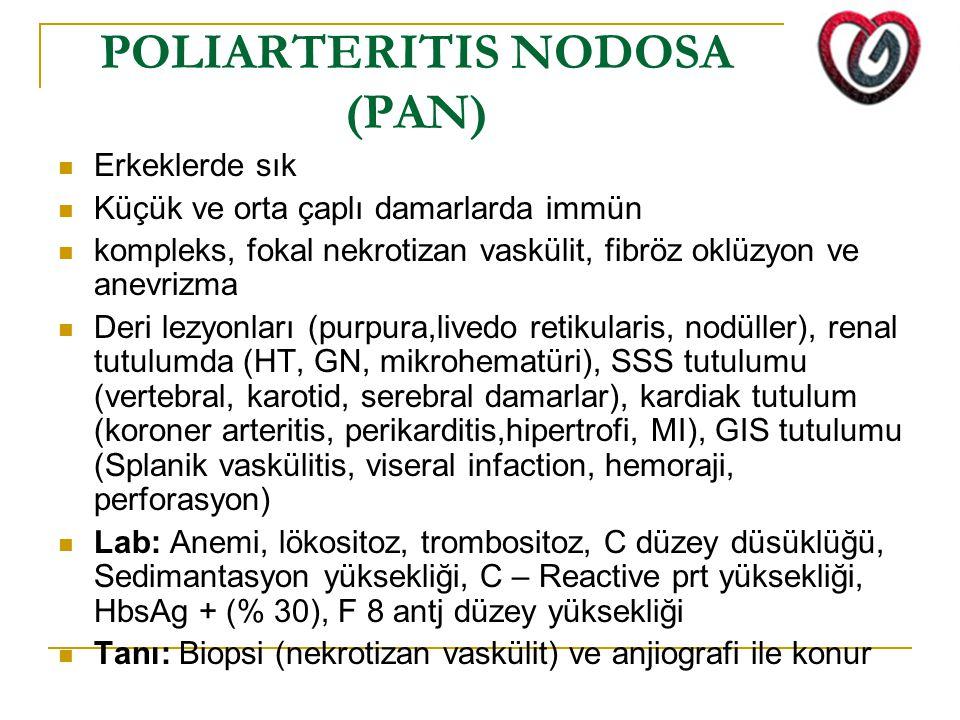 POLIARTERITIS NODOSA (PAN)