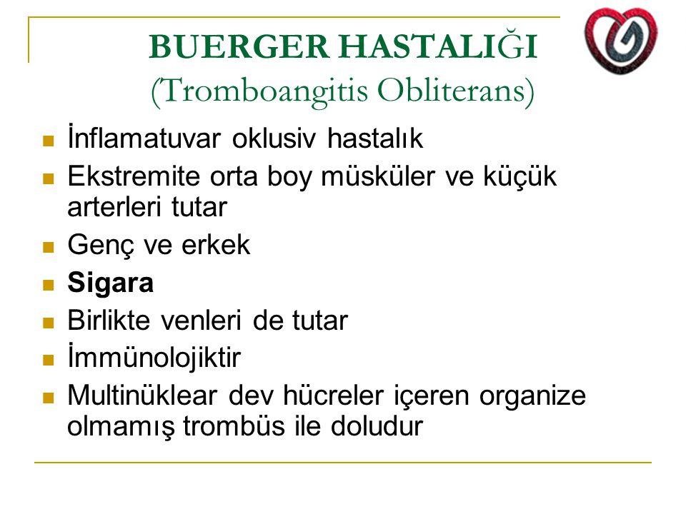 BUERGER HASTALIĞI (Tromboangitis Obliterans)