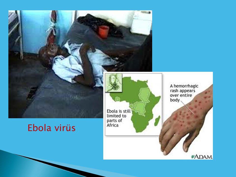Ebola virüs