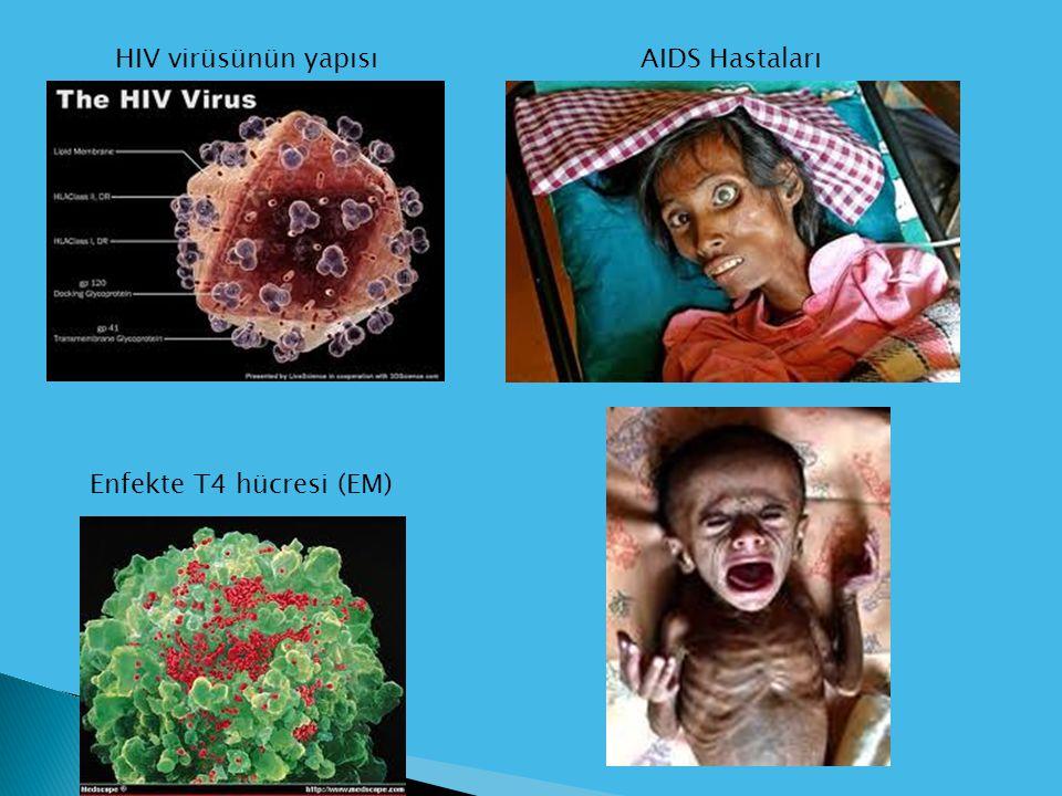 HIV virüsünün yapısı AIDS Hastaları Enfekte T4 hücresi (EM)