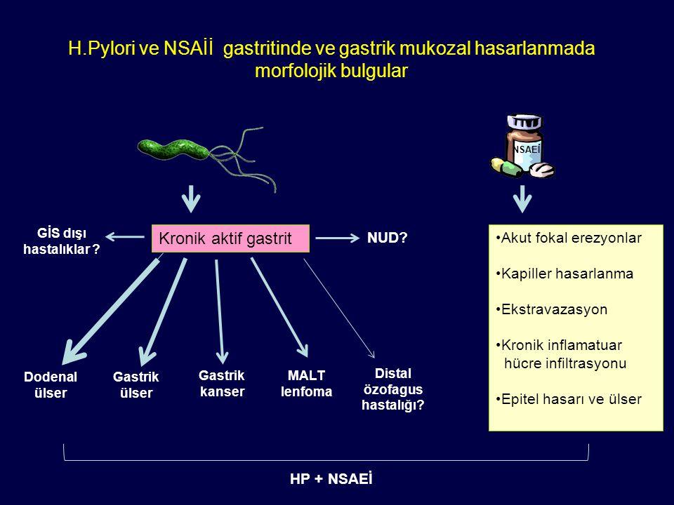 Distal özofagus hastalığı