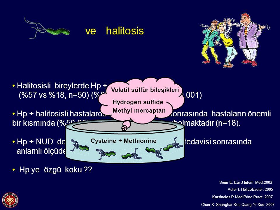 Volatil sülfür bileşikleri