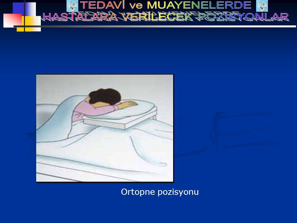 Ortopne pozisyonu