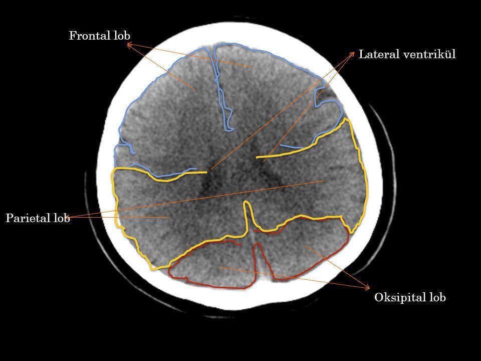 Frontal lob Lateral ventrikül Parietal lob Oksipital lob