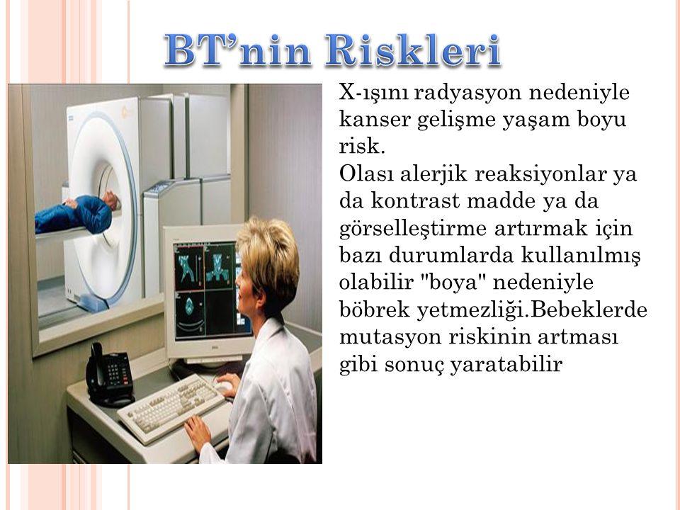 BT'nin Riskleri X-ışını radyasyon nedeniyle kanser gelişme yaşam boyu risk.