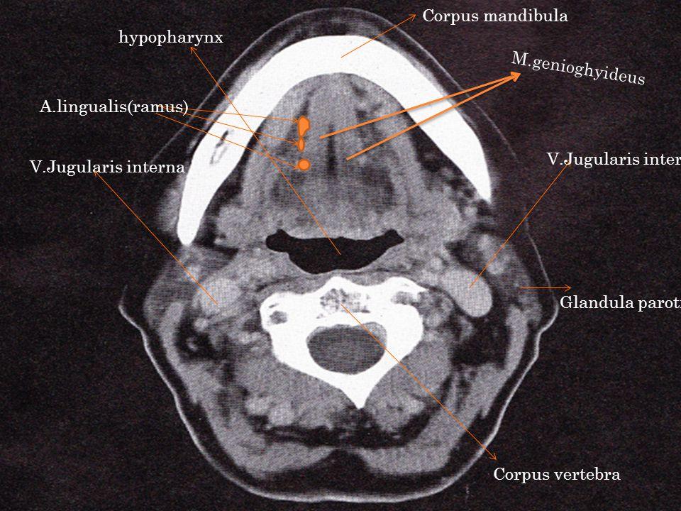 Corpus mandibula hypopharynx. M.genioghyideus. A.lingualis(ramus) V.Jugularis interna. V.Jugularis interna.