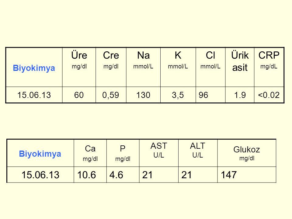Üre Cre Na K Cl Ürik asit CRP 15.06.13 10.6 4.6 21 147 Biyokimya