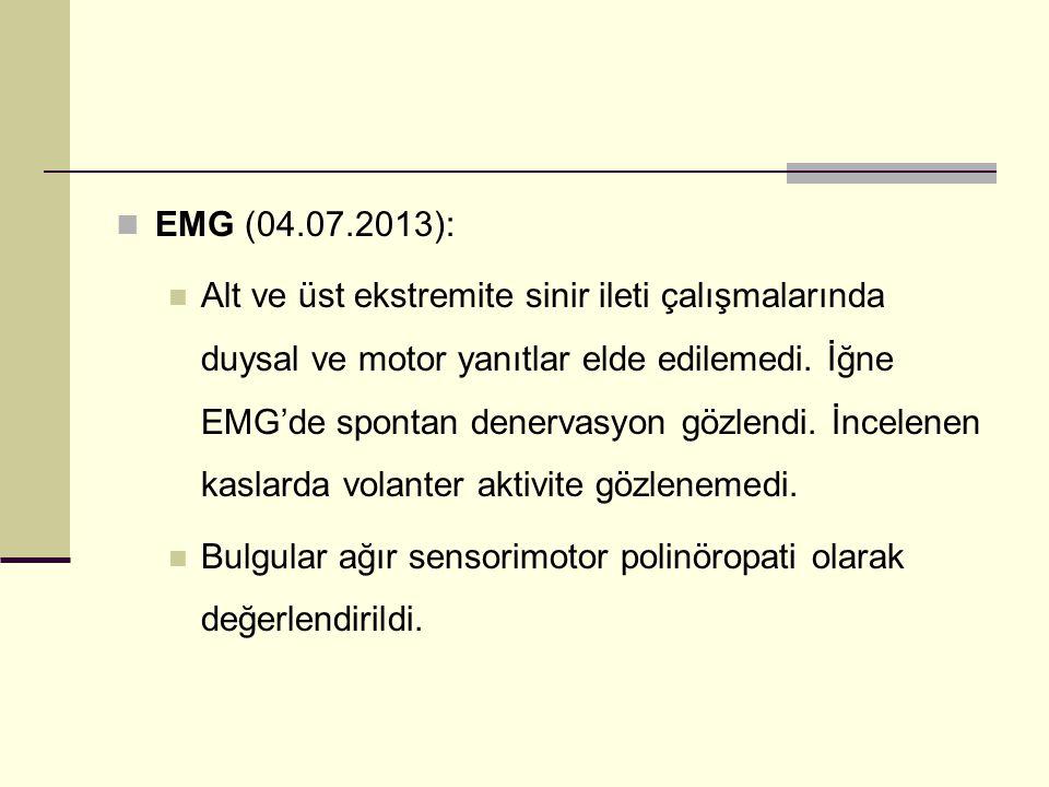 EMG (04.07.2013):