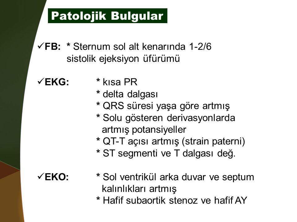 Patolojik Bulgular FB: * Sternum sol alt kenarında 1-2/6 sistolik ejeksiyon üfürümü. EKG: * kısa PR.