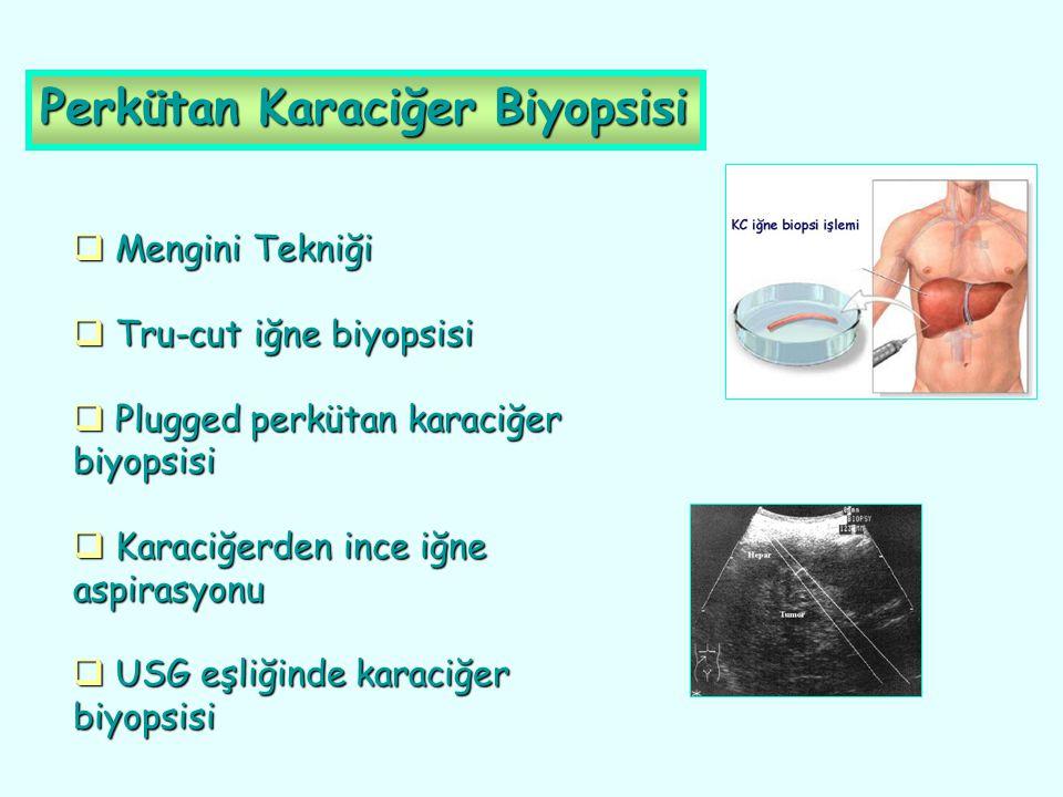 Perkütan Karaciğer Biyopsisi