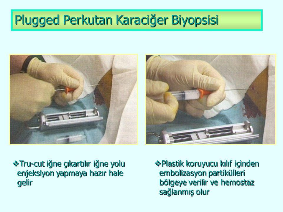 Plugged Perkutan Karaciğer Biyopsisi