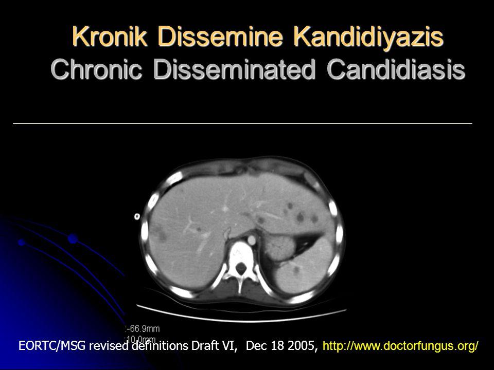Kronik Dissemine Kandidiyazis Chronic Disseminated Candidiasis