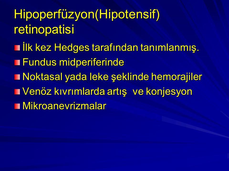 Hipoperfüzyon(Hipotensif) retinopatisi
