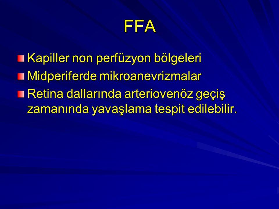 FFA Kapiller non perfüzyon bölgeleri Midperiferde mikroanevrizmalar