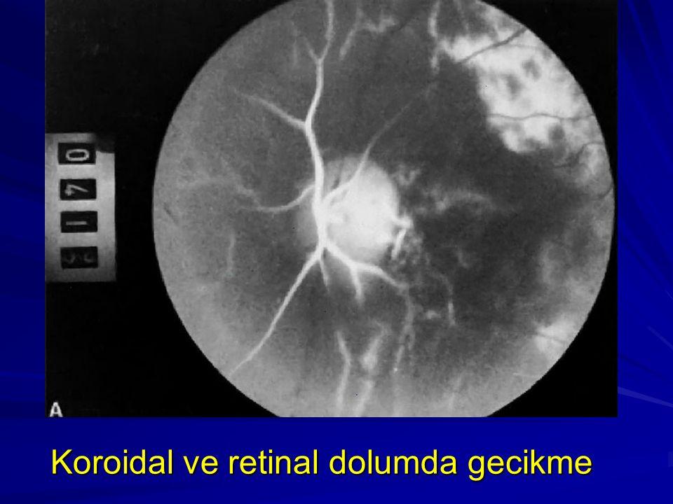 Koroidal ve retinal dolumda gecikme