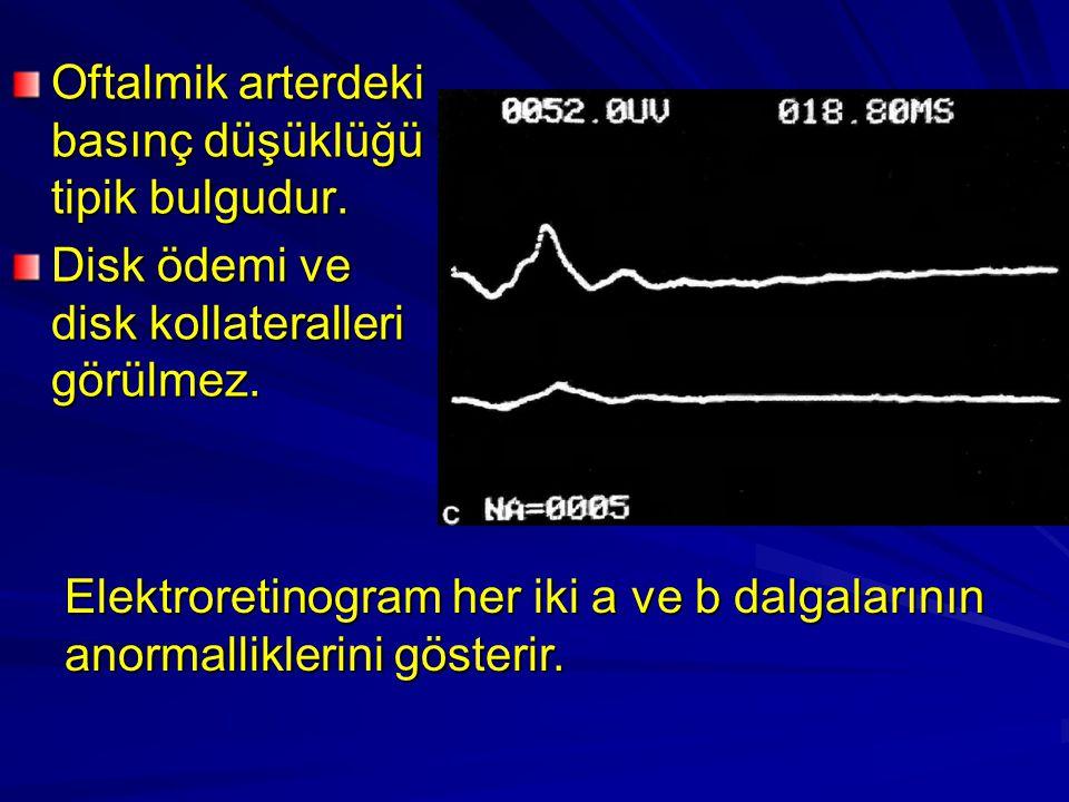 Oftalmik arterdeki basınç düşüklüğü tipik bulgudur.