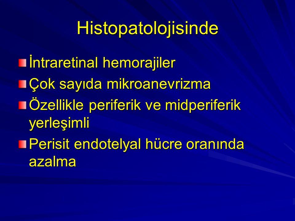Histopatolojisinde İntraretinal hemorajiler Çok sayıda mikroanevrizma