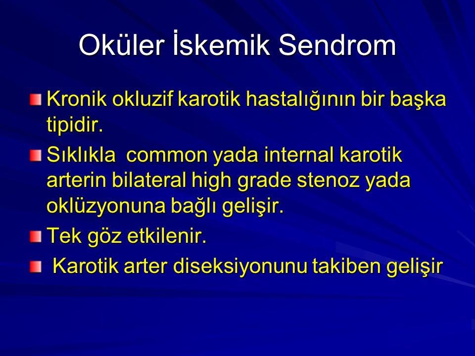 Oküler İskemik Sendrom