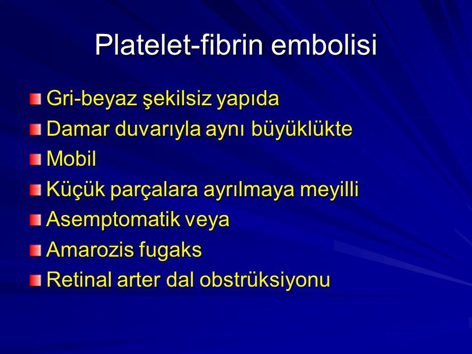 Platelet-fibrin embolisi