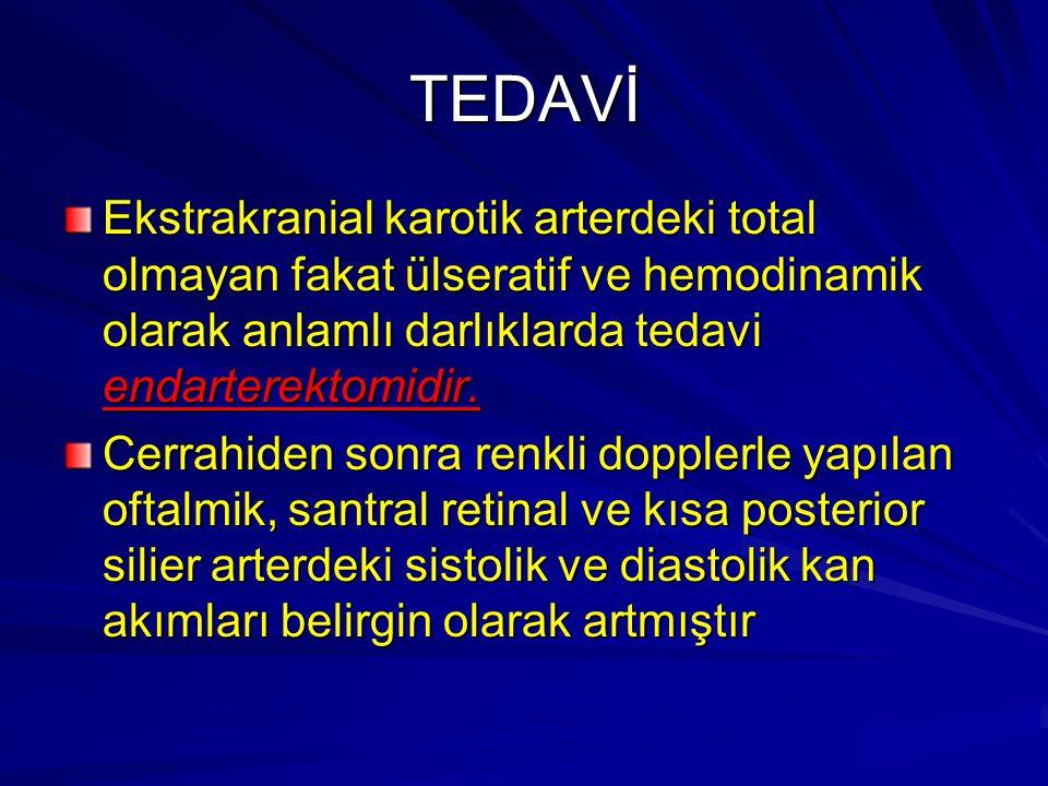 TEDAVİ Ekstrakranial karotik arterdeki total olmayan fakat ülseratif ve hemodinamik olarak anlamlı darlıklarda tedavi endarterektomidir.