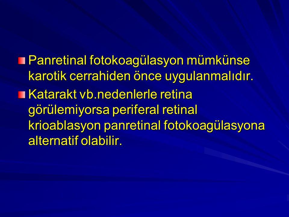 Panretinal fotokoagülasyon mümkünse karotik cerrahiden önce uygulanmalıdır.