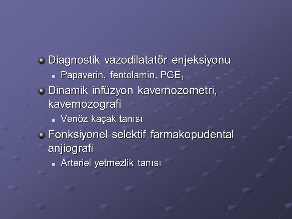 Diagnostik vazodilatatör enjeksiyonu